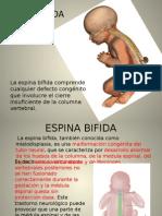 Espina Bifida Ibai