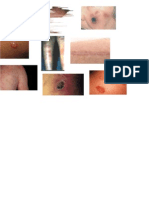 Lesiones Primarias Derma
