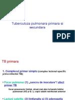 TB LP Teorie