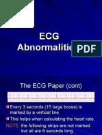 Basic EKG 2