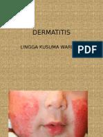Presentasi Dermatitis Atopik (Ekzema)