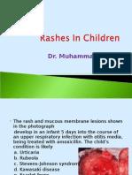 Rashes in Children by Dr. Muhammad.rashid