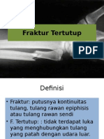 Def&Eti Closed Fracture