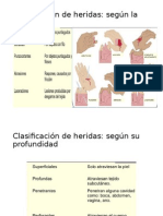 clasificacion de heridas.pptx