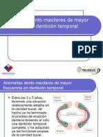 Anomalias Dentoalveolares - Dentición Mixta