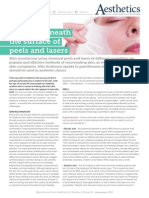 Special Feature on Peels & Laser Skin Resurfacing Treatments