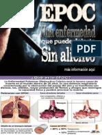 EPOC, enfermedad obstructiva crónica.