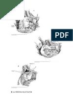 Coledocoduodenostomia
