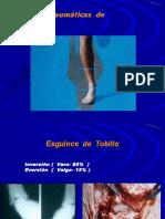 Fracturas de Pie,Tobillo.pierna
