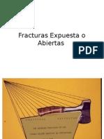 Fracturas Expuesta o Abiertas