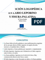 fisura -labiopalatina