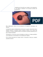 Malformaciones de Embriologia