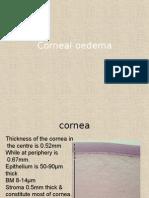 Corneal Edema