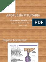 Presentación - APOPLEJÍA PITUITARIA