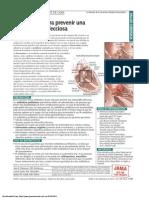antibioticos prevencion endocarditis infecciosa.pdf