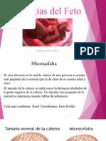 patologias del feto