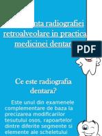 Importanta Radiografiei Retroalveolare in Practica Medicinei Dentare