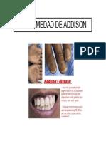 ADISSON enfermedad