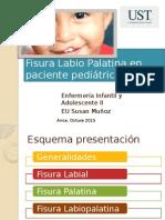 Clase Fisura Labio Palatina en Paciente Pediátrico