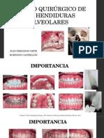 Manejo Quirúrgico de Las Hendiduras Alveolares