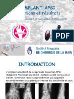 L'implant APSI