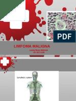 His - Limfoma Maligna