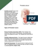Normal Prostate GlandProstate Gland With Tumor