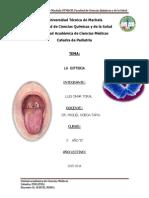 Informe de Difteria Alumno Luis Toral