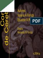 Cortes de cerebro-neuroanatomía