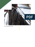 Wire Protrusion