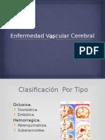 EVC.pptx