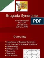 Brugada Syndrome ECG