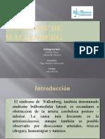 Síndrome de Wallenberg Ppt