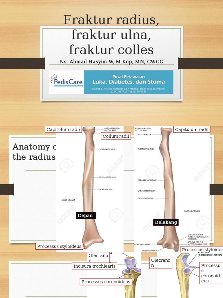 Fraktur Radius, Fraktur Ulna, Fraktur Colles | Elbow | Traumatology