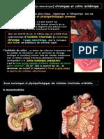Ischémies Intestinales Chroniques Et SubaiguësFILEminimizer