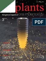 Implants International Edition No. 3, 2015