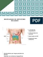 Neoplasias de Intestino Delgado