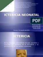 ICTERICIA NEONATAL_L[1].pptx