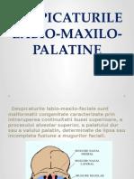 Despicaturile Labio Maxilo Palatine !