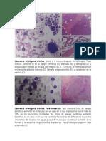 Leucemia cronica