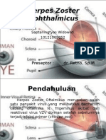 CSS - Herpes Zoster Ophthalmicus (Tyas)