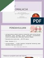 Laryngomalacia.pptx