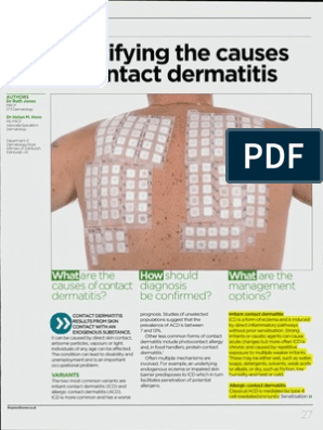 Identifying the Cause of Contact Dermatitis | Dermatitis