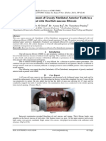 Aesthetic Management of Grossly Mutilated Anterior Teeth in a patient with Oral Sub mucous Fibrosis