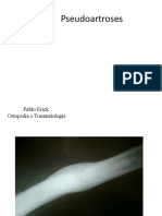 Pseudoartroses
