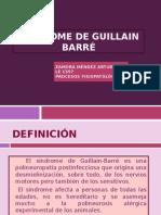 2 Sindrome de Guillian Barré