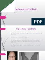 Garcia-Martinez Angioedema Hereditario ppt1.pptx