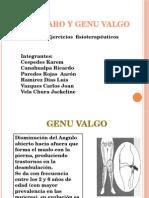 Genu Valgo y Varo.