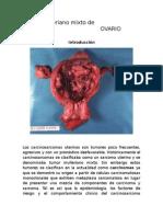 Tumor mulleriano mixto de ovario