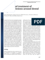 Etiology and treatment of periapical lesions around dental implants.pdf